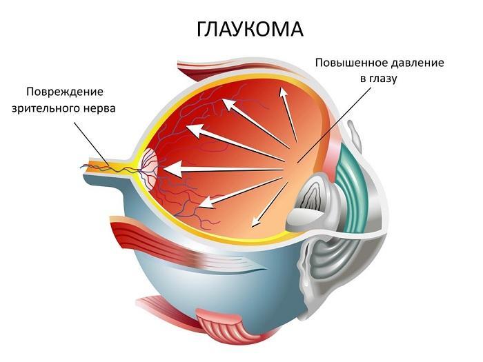 Глаукома на глазах