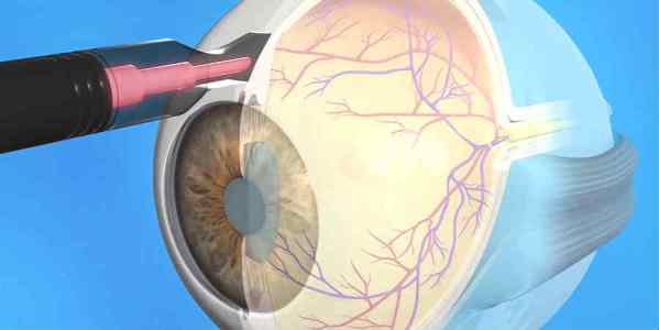 Циклофотокоагуляция при глаукоме: принцип работы, реабилитация