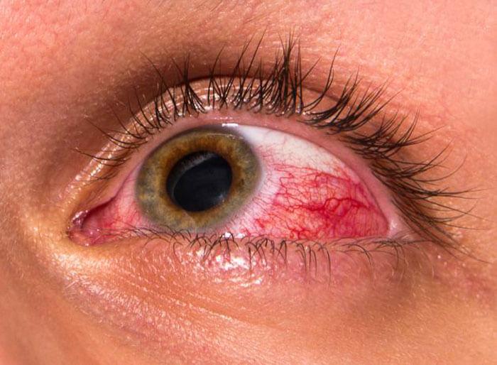 Камеры глаза и внутриглазное давление