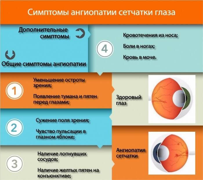 Что такое ангиопатия сетчатки глаза и как лечить заболевание
