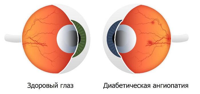 Диабетическая ангиопатия сетчатки глаза
