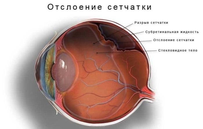 Отслоение сетчатки ока - послеоперационный период — Глаза Эксперт