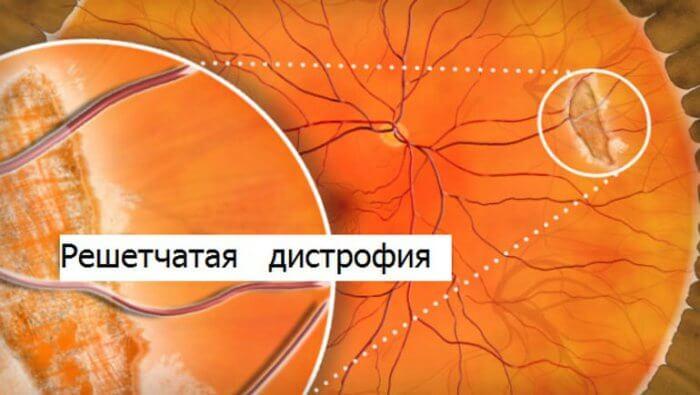 Можно ли вылечить дистрофию сетчатки глаза